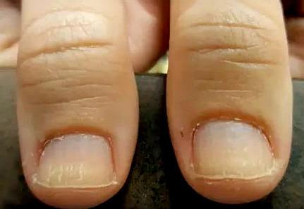 заусенцы на пальцах рук как избавиться