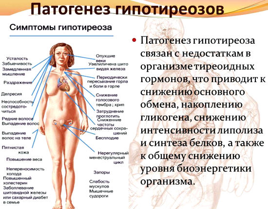 гипотиреоз микседема