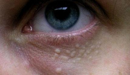 Жировик на лице, веке, около глаз — фото, причины, как избавиться от липомы