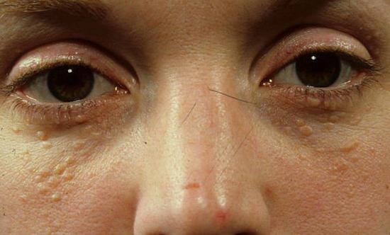 жировики - липомы около глаз