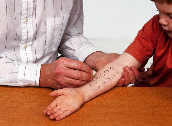 диагностика аллергии - метод кожных аллергопроб