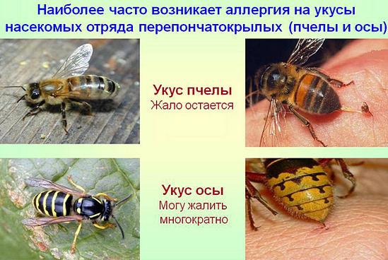 укусы пчел и ос - разница