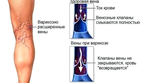варикозное расширение вен - показание для склеротерапии