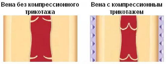 воздействие компрессионного трикотажа на вены