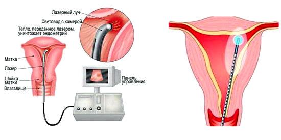 лазерное лечение полипов в матке
