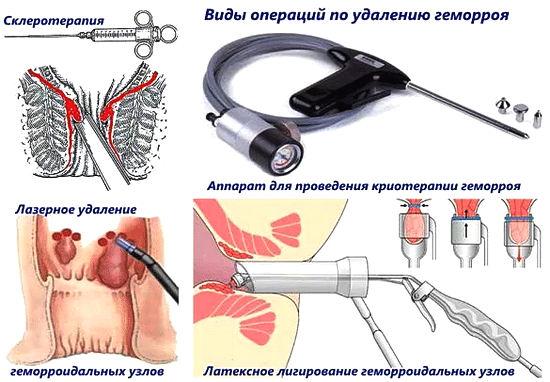 новые методы хирургического вмешательства при геморрое