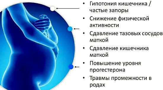 причины развития геморроя при беременности