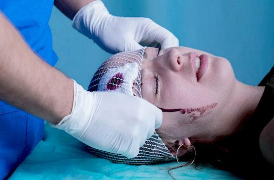 черепно-мозговая травма - симптомы, помощь