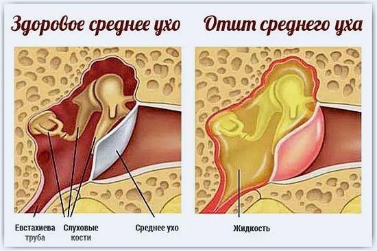 Болит в ухо попала вода, что делать? » Домашняя копилка 26