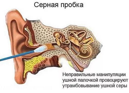 заложено ухо после чистки ушей