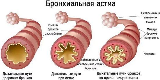 бронхиальной астма животных