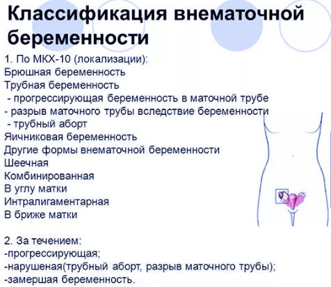 классификация внематочной беременности