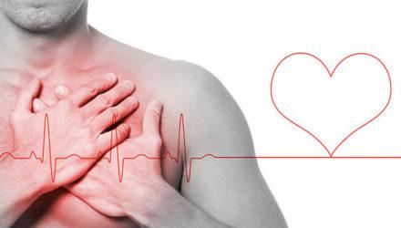 Аритмия сердца: причины, симптомы, лечение, виды аритмии, первая помощь