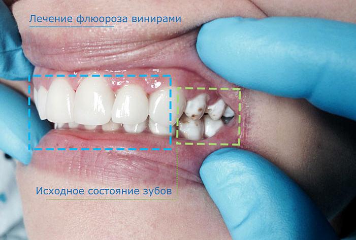внутренние отбеливание зубов