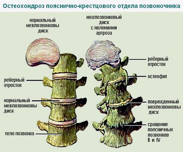 остеохондроз поясничного отдела позвоночника