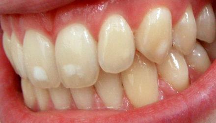 Пятна на зубах — причины, как избавиться