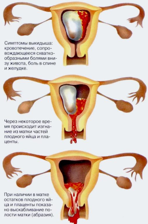 самопроизвольный аборт в ходу
