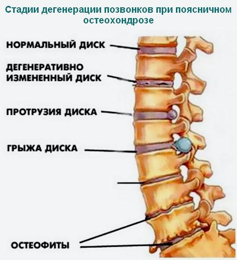 стадии развития остеохондроха поясничного отдела