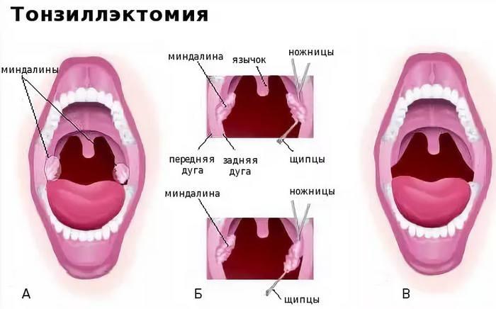удаление миндалин - оперативное лечение тонзиллита