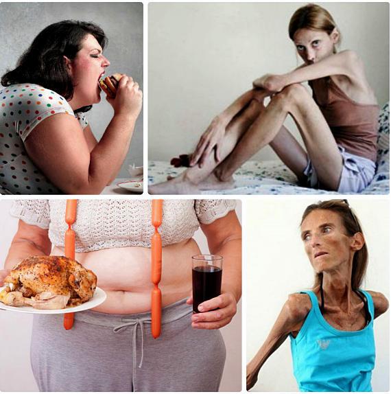 булимия и анорексия отличие