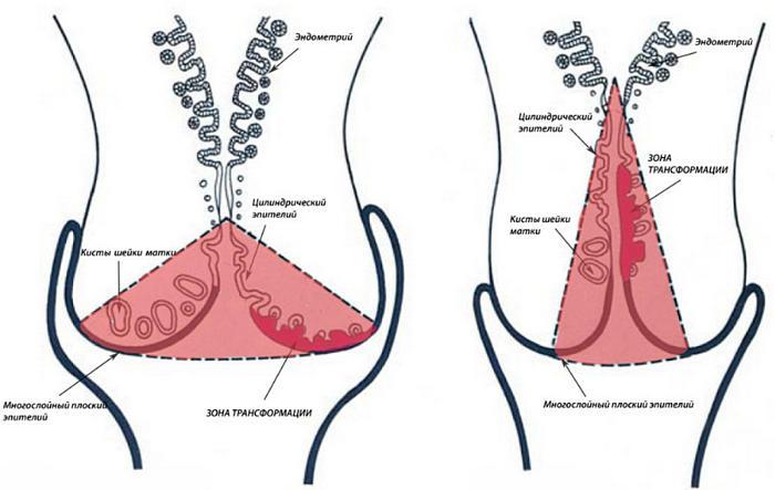 процедура конизации шейки матки как проводится