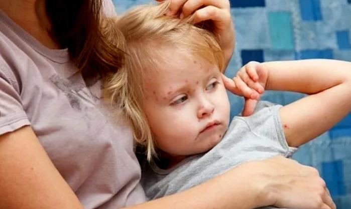 лечение краснухи у детей и взрослых