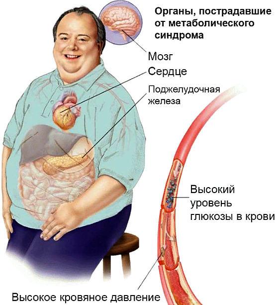 метаболический синдром - что поражается