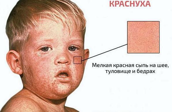 симптомы краснухи и признаки