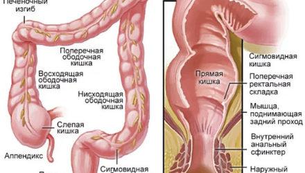 Колит кишечника, его виды — симптомы и лечение у взрослых, диета
