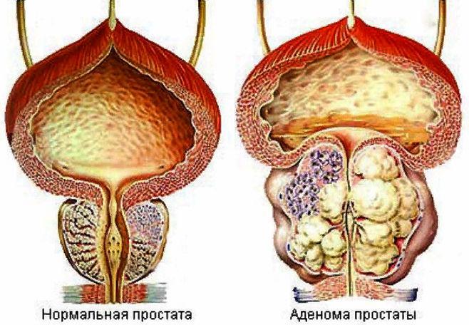 аденома предстательной железы у мужчин