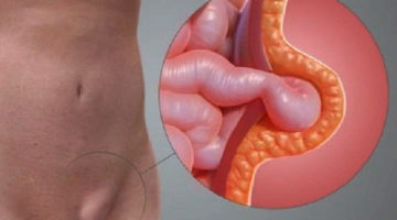 Паховая грыжа — причины, симптомы, диагностика, лечение, профилактика