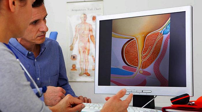 диагностика аденомы предстательной железы, лечение