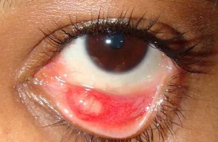 халязион основные симптомы