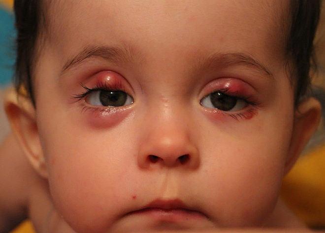 халязионы верхнего и нижнего века у ребенка