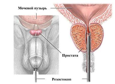 хирургическое лечение аденомы предстательной железы