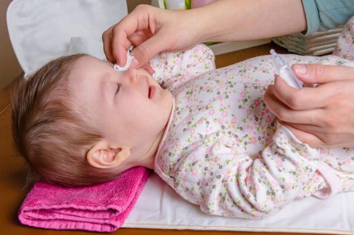 конъюнктивит у детей симптомы, причины, лечение