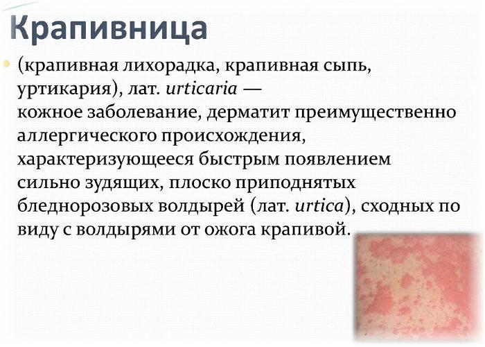 крапивница - определение, причины, симптомы