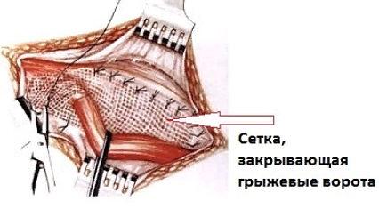 операция по поводу паховой грыжи