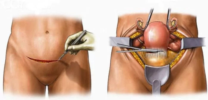 операция при фиброме матки у женщин