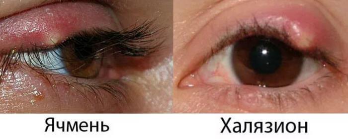 отличие халяхиона от ячменя на глазу