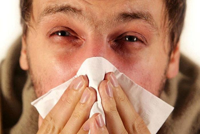 ринит - причины, симптомы, лечение