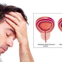 Аденома предстательной железы — симптомы, стадии, диагностика и лечение