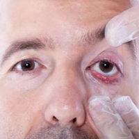 Халязионы век — причины, симптомы, лечение, профилактика, отличие от ячменя