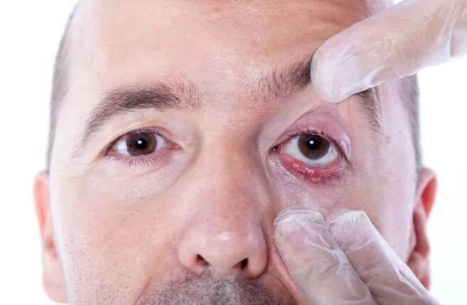 симптомы и лечение халязиона на глазу