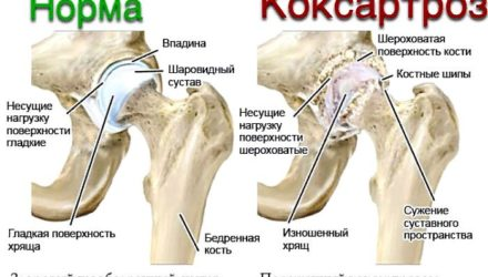 Артроз тазобедренного сустава — симптомы и лечение коксартроза