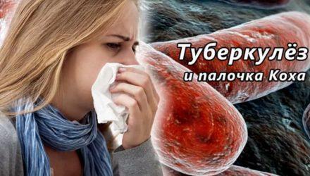 Туберкулез — симптомы, первые признаки у взрослых, лечение