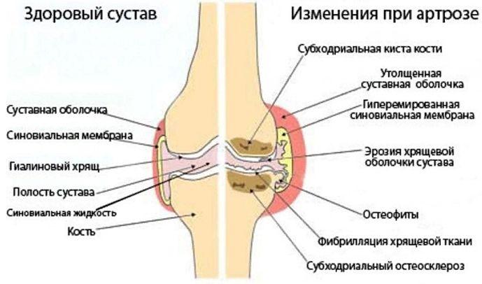 изменения при артрозе тазобедренного сустава