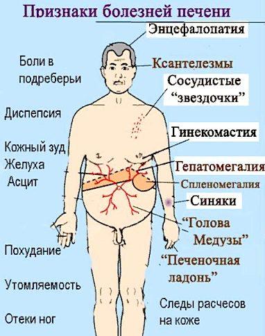 признаки болезней печени
