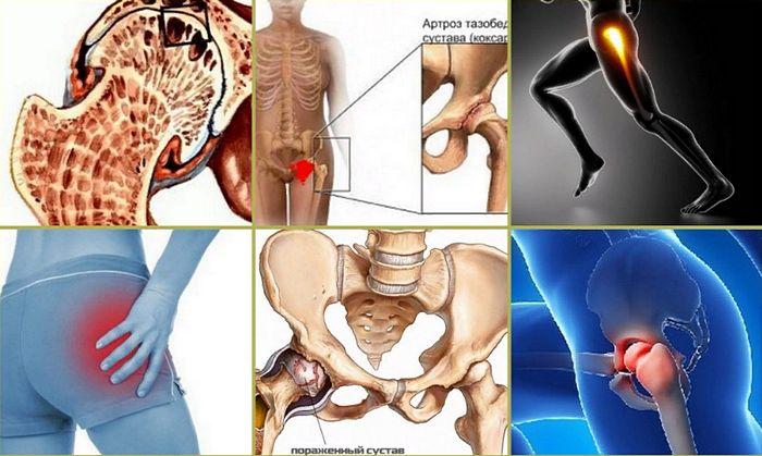симптомы артроза тазобедренного сустава