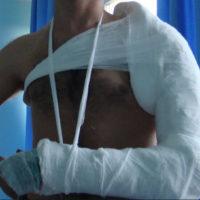 Вывих: симптомы, первая помощь при вывихе, лечение, последствия